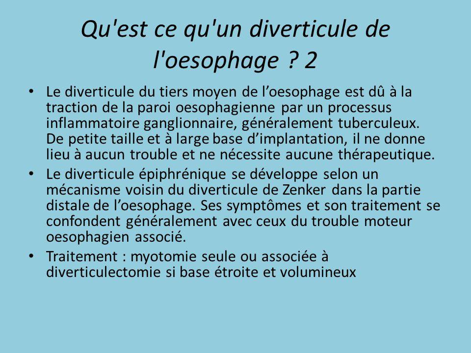 Qu'est ce qu'un diverticule de l'oesophage ? 2 Le diverticule du tiers moyen de l'oesophage est dû à la traction de la paroi oesophagienne par un proc