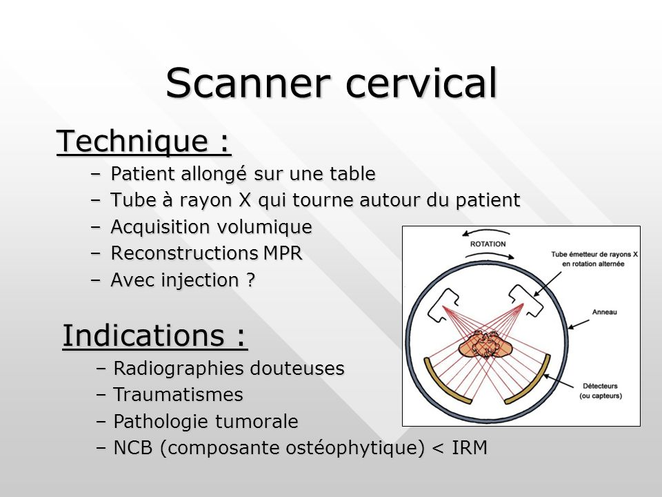 Scanner cervical Technique : –Patient allongé sur une table –Tube à rayon X qui tourne autour du patient –Acquisition volumique –Reconstructions MPR –