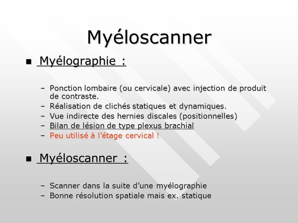 Myéloscanner Myélographie : Myélographie : –Ponction lombaire (ou cervicale) avec injection de produit de contraste.