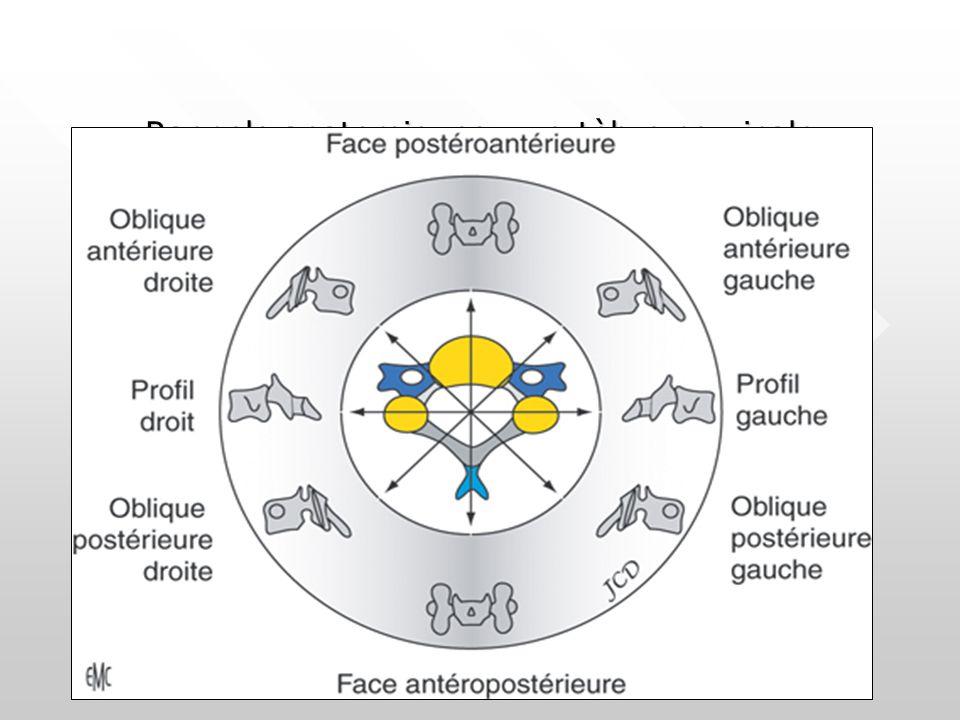 Discopathie étagée - canal lombaire étroit dégénératif & constitutionnel Bombement discal Hypertrophie du ligament jaune Brièveté pédiculaire