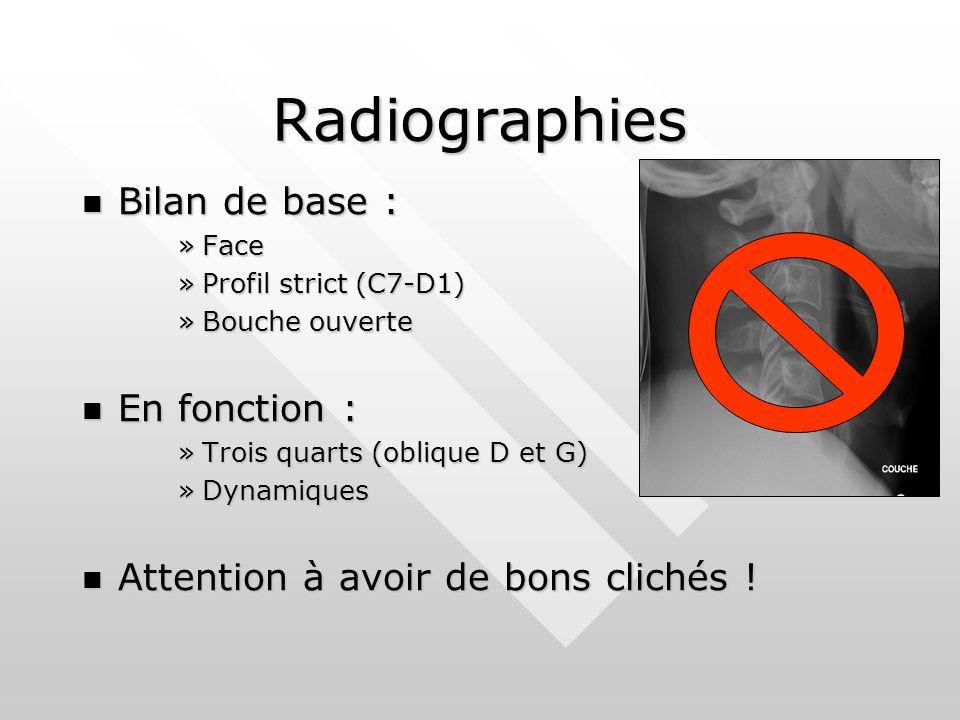 Radiographies Bilan de base : Bilan de base : »Face »Profil strict (C7-D1) »Bouche ouverte En fonction : En fonction : »Trois quarts (oblique D et G) »Dynamiques Attention à avoir de bons clichés .