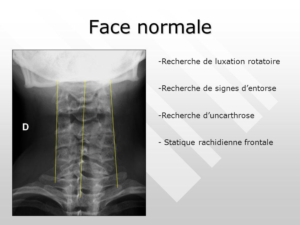 Face normale -Recherche de luxation rotatoire -Recherche de signes d'entorse -Recherche d'uncarthrose - Statique rachidienne frontale