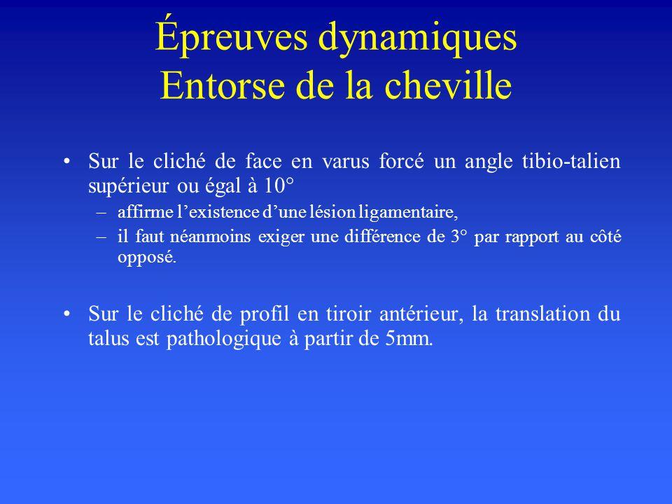 Épreuves dynamiques: EX: entorse de la cheville En varus et en tiroir antérieur Leur but est de visualiser et de quantifier la lésion ligamentaire Les