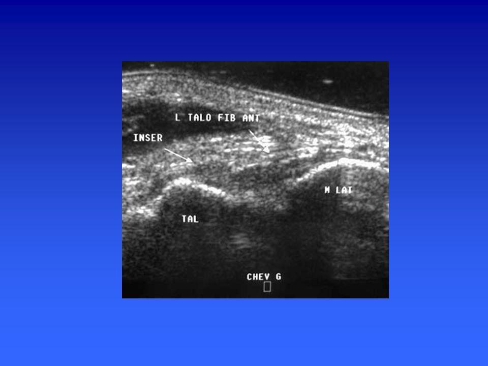 Ligament collatéral latéral Faisceau antérieur : talofibulaire antérieur ( TAFA) malléole latérale, col talus. Faisceau moyen : fibulo- calcanéen., ob