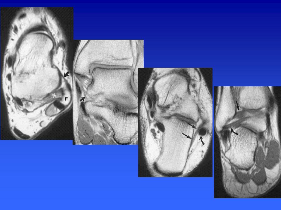 Les tendons médiaux