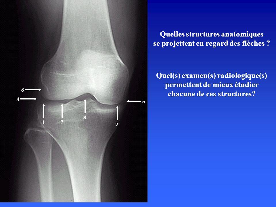 Radiographie standard de genou Incidence de profil