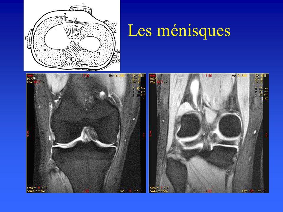 Ligament croisé postérieur Principale fonction du LCP –Contrôler le déplacement postérieur du tibia / au fémur, –S'opposer à la rotation interne du ti