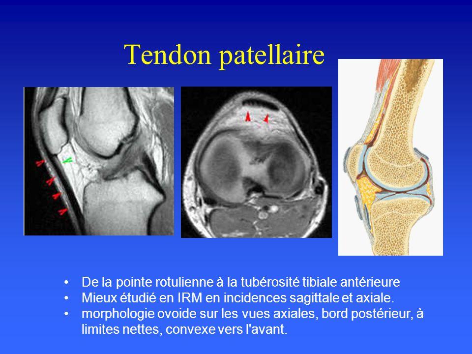 Le Ligament Latéral Interne Constitué d'un feuillet superficiel et d'un feuillet profond Insertion supérieure : en arrière du tubercule condylien inte