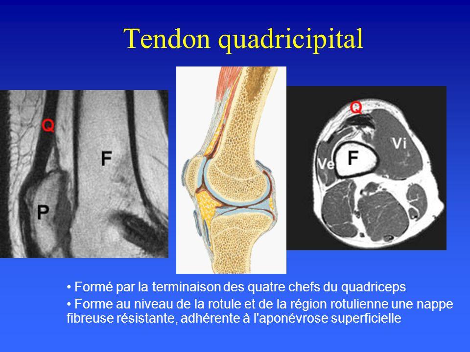 Tendon patellaire De la pointe rotulienne à la tubérosité tibiale antérieure Mieux étudié en IRM en incidences sagittale et axiale. morphologie ovoide
