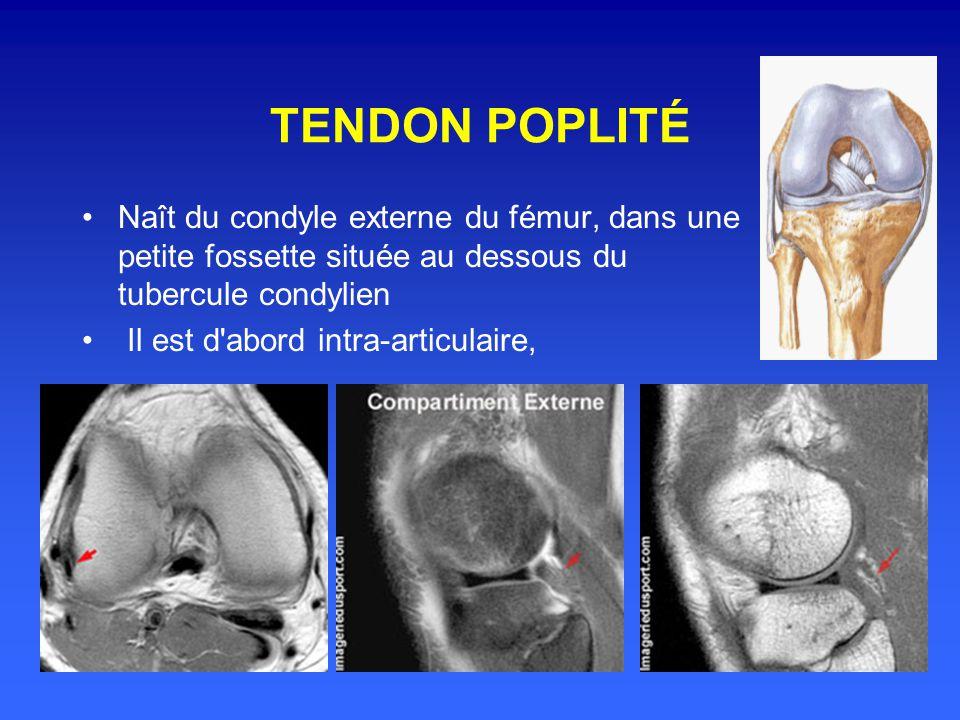 Tendon quadricipital Formé par la terminaison des quatre chefs du quadriceps Forme au niveau de la rotule et de la région rotulienne une nappe fibreus