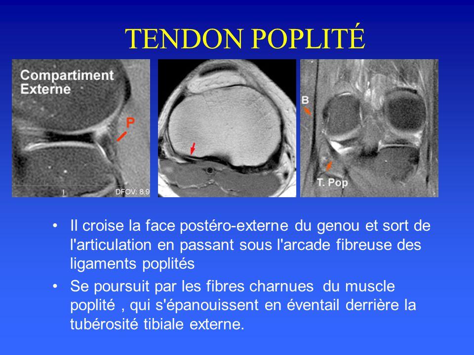 TENDON POPLITÉ Naît du condyle externe du fémur, dans une petite fossette située au dessous du tubercule condylien Il est d'abord intra-articulaire,