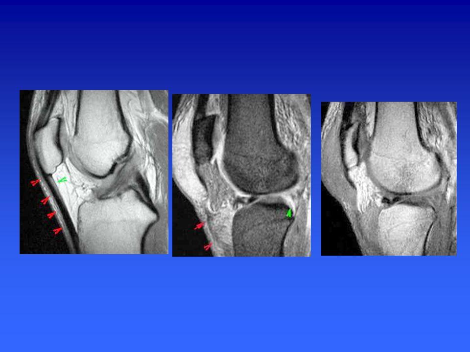 TENDON POPLITÉ Il croise la face postéro-externe du genou et sort de l'articulation en passant sous l'arcade fibreuse des ligaments poplités Se poursu