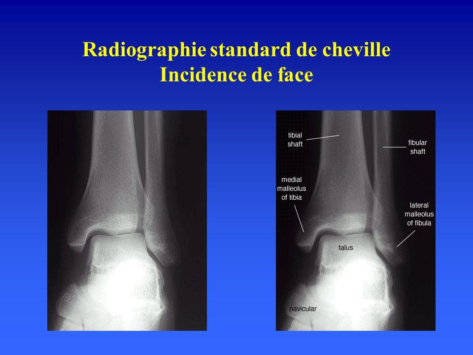 Ligament collatéral latéral Faisceau antérieur : talofibulaire antérieur ( TAFA) malléole latérale, col talus.