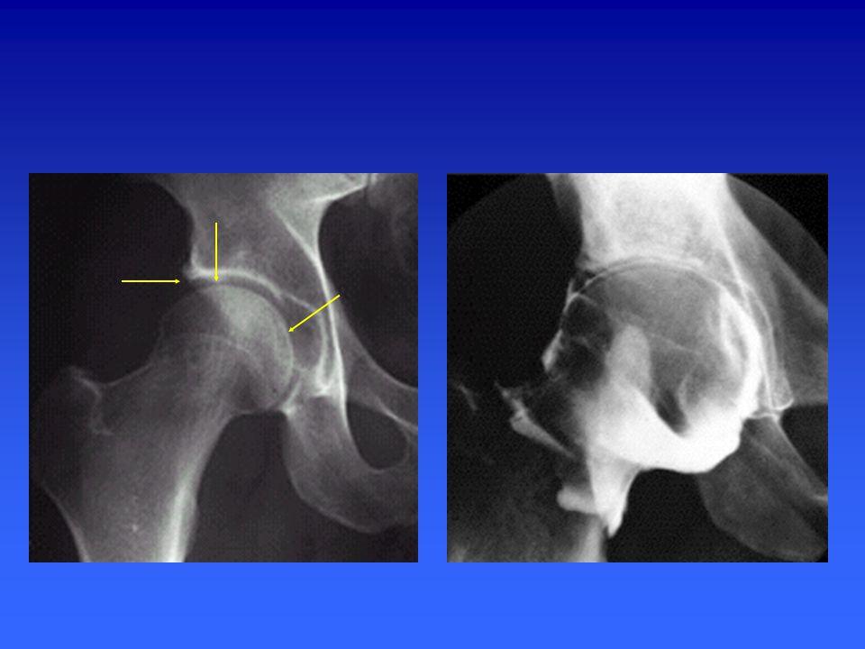 Quelles structures anatomiques se projettent en regard des flèches ?