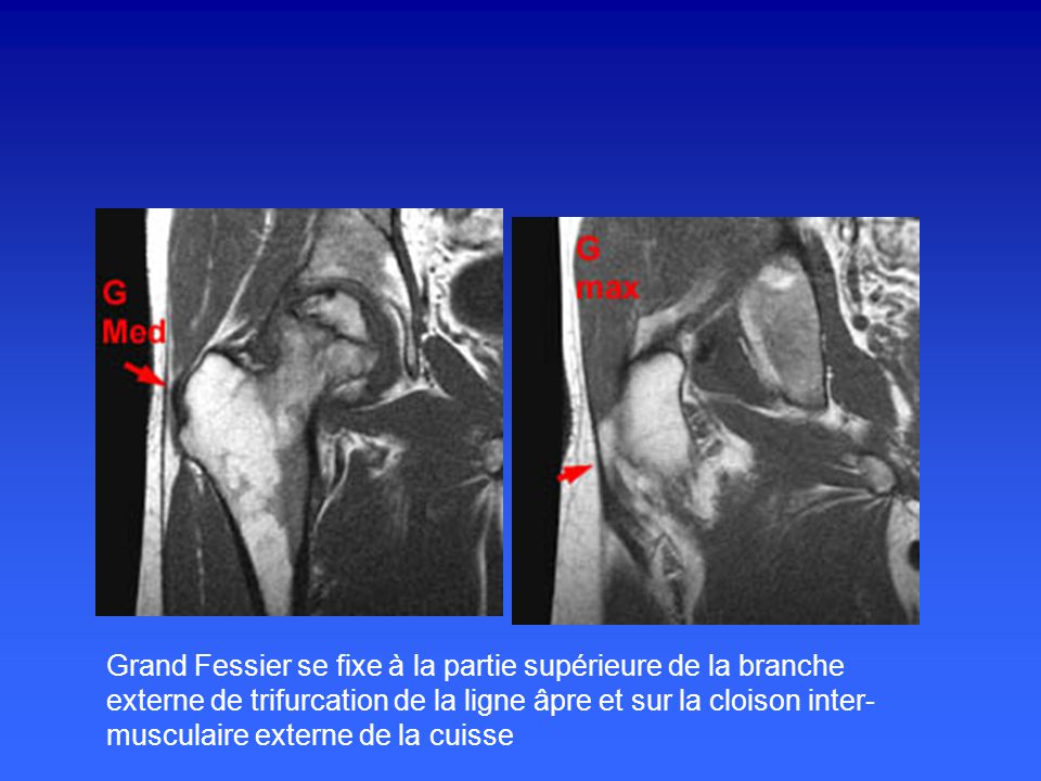 Petit Fessier,se termine par un court tendon qui glisse sur le gd trochanter par l'intermédiaire d'une bourse séreuse puis se fixe sur la face ant du