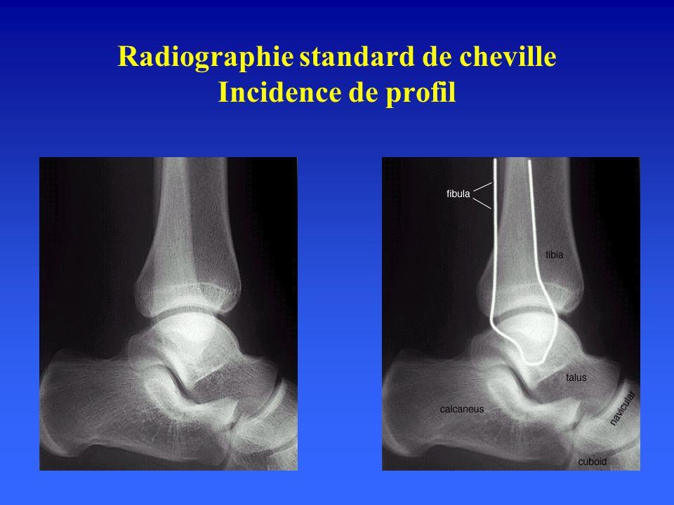 Radiographie standard de cheville Incidence de face