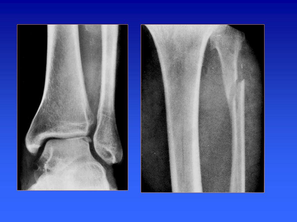 Radiographie standard de cheville Incidence de profil