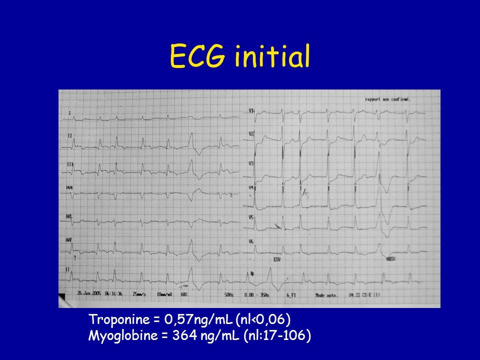 ECG initial Troponine = 0,57ng/mL (nl‹0,06) Myoglobine = 364 ng/mL (nl:17-106)