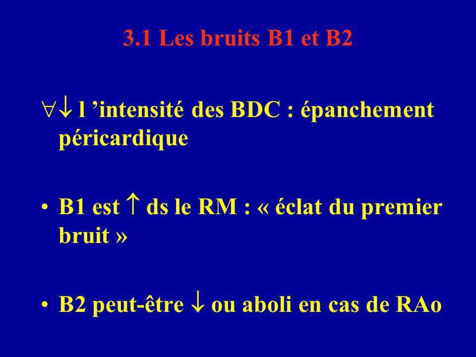 3.1 Les bruits B1 et B2  l 'intensité des BDC : épanchement péricardique B1 est  ds le RM : « éclat du premier bruit » B2 peut-être  ou aboli en c