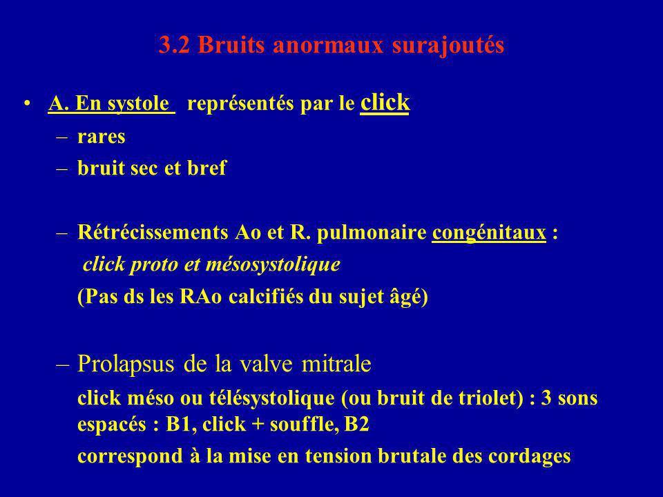 3.2 Bruits anormaux surajoutés A. En systole représentés par le click –rares –bruit sec et bref –Rétrécissements Ao et R. pulmonaire congénitaux : cli