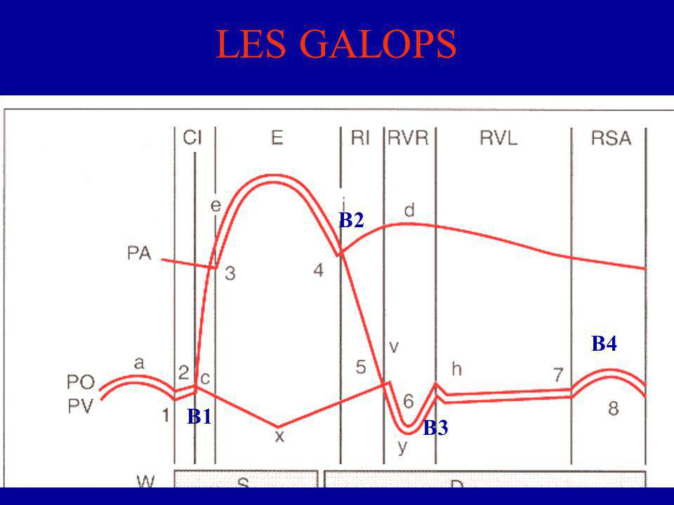LES GALOPS B1 B2 B3 B4