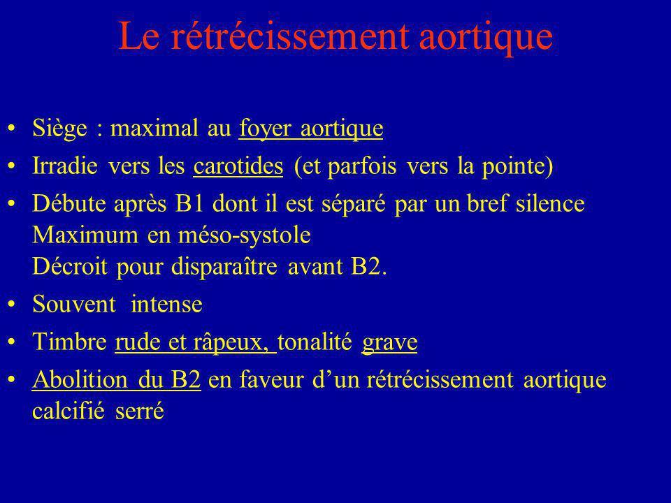 Le rétrécissement aortique Siège : maximal au foyer aortique Irradie vers les carotides (et parfois vers la pointe) Débute après B1 dont il est séparé