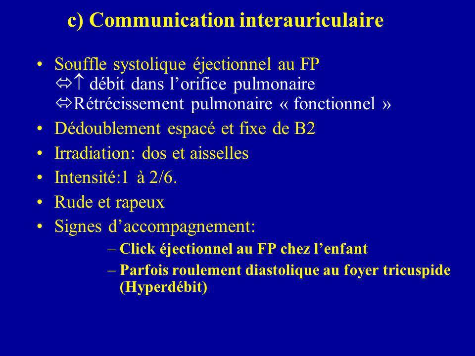 c) Communication interauriculaire Souffle systolique éjectionnel au FP   débit dans l'orifice pulmonaire  Rétrécissement pulmonaire « fonctionnel »