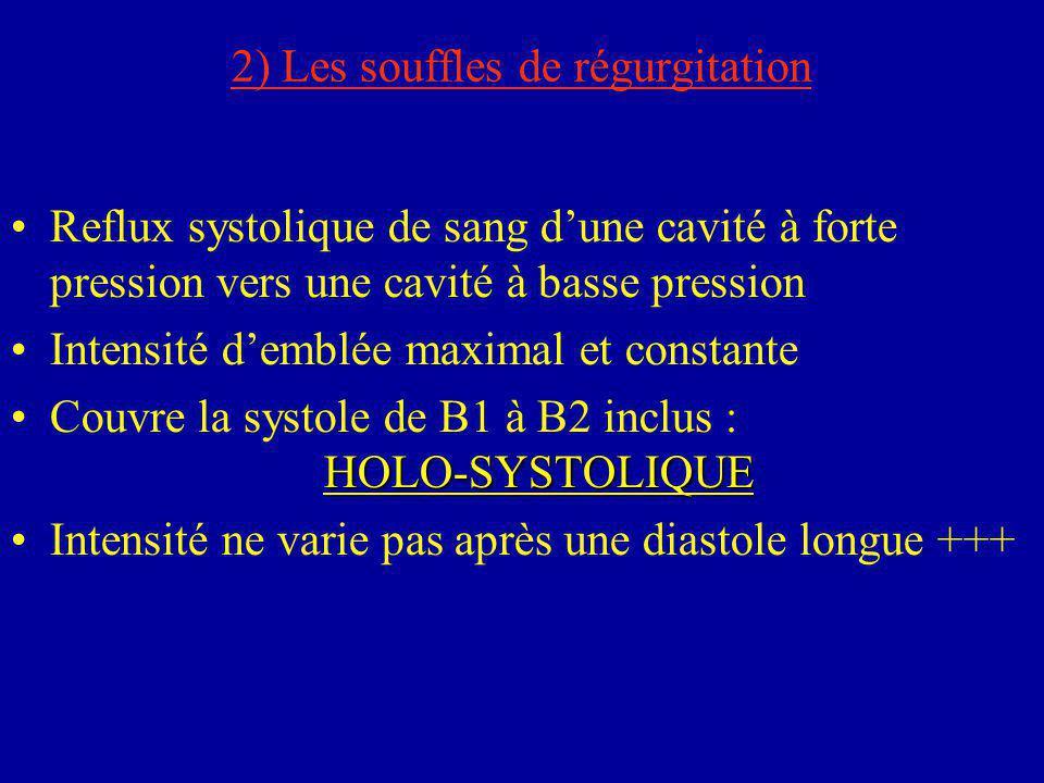2) Les souffles de régurgitation Reflux systolique de sang d'une cavité à forte pression vers une cavité à basse pression Intensité d'emblée maximal e