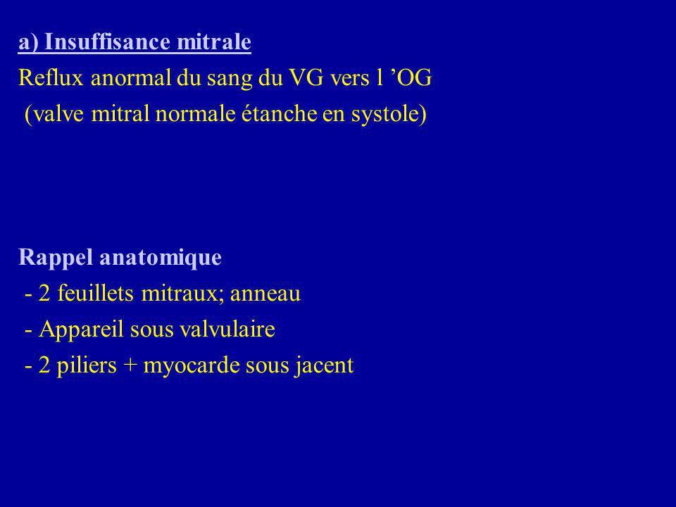 a) Insuffisance mitrale Reflux anormal du sang du VG vers l 'OG (valve mitral normale étanche en systole) Rappel anatomique - 2 feuillets mitraux; ann