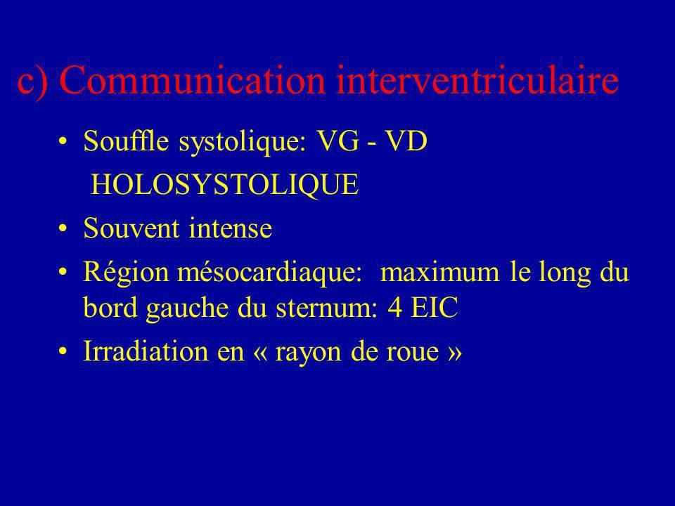 c) Communication interventriculaire Souffle systolique: VG - VD HOLOSYSTOLIQUE Souvent intense Région mésocardiaque: maximum le long du bord gauche du