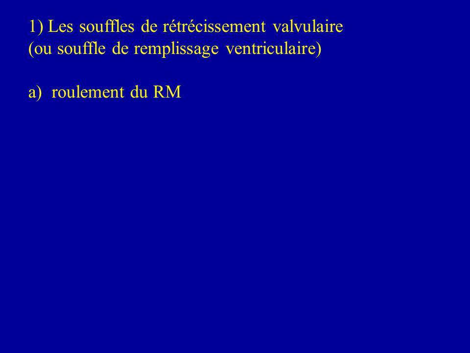 1) Les souffles de rétrécissement valvulaire (ou souffle de remplissage ventriculaire) a) roulement du RM