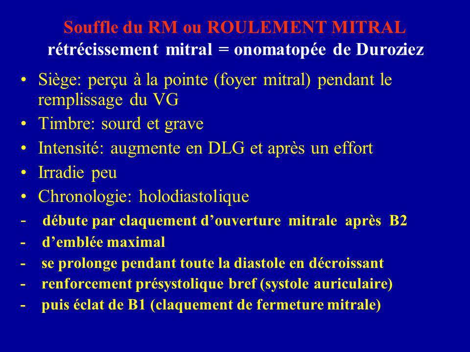Souffle du RM ou ROULEMENT MITRAL rétrécissement mitral = onomatopée de Duroziez Siège: perçu à la pointe (foyer mitral) pendant le remplissage du VG