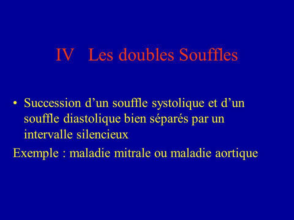 IV Les doubles Souffles Succession d'un souffle systolique et d'un souffle diastolique bien séparés par un intervalle silencieux Exemple : maladie mit