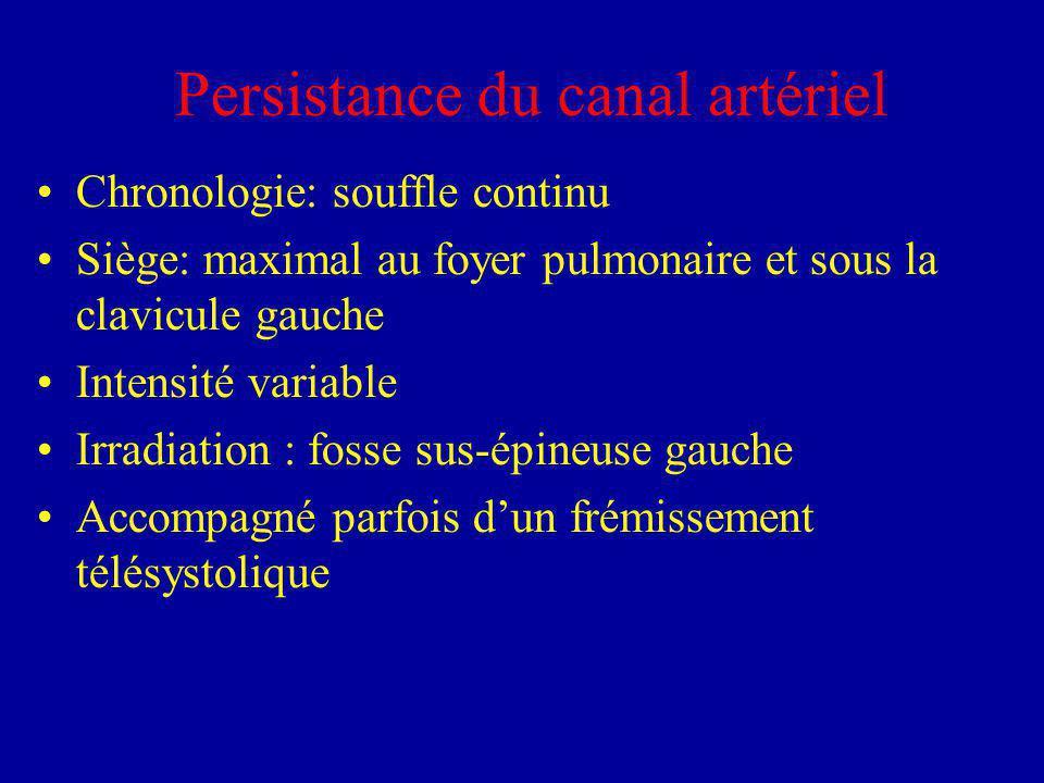 Persistance du canal artériel Chronologie: souffle continu Siège: maximal au foyer pulmonaire et sous la clavicule gauche Intensité variable Irradiati