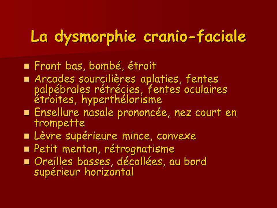 La dysmorphie cranio-faciale Front bas, bombé, étroit Front bas, bombé, étroit Arcades sourcilières aplaties, fentes palpébrales rétrécies, fentes ocu