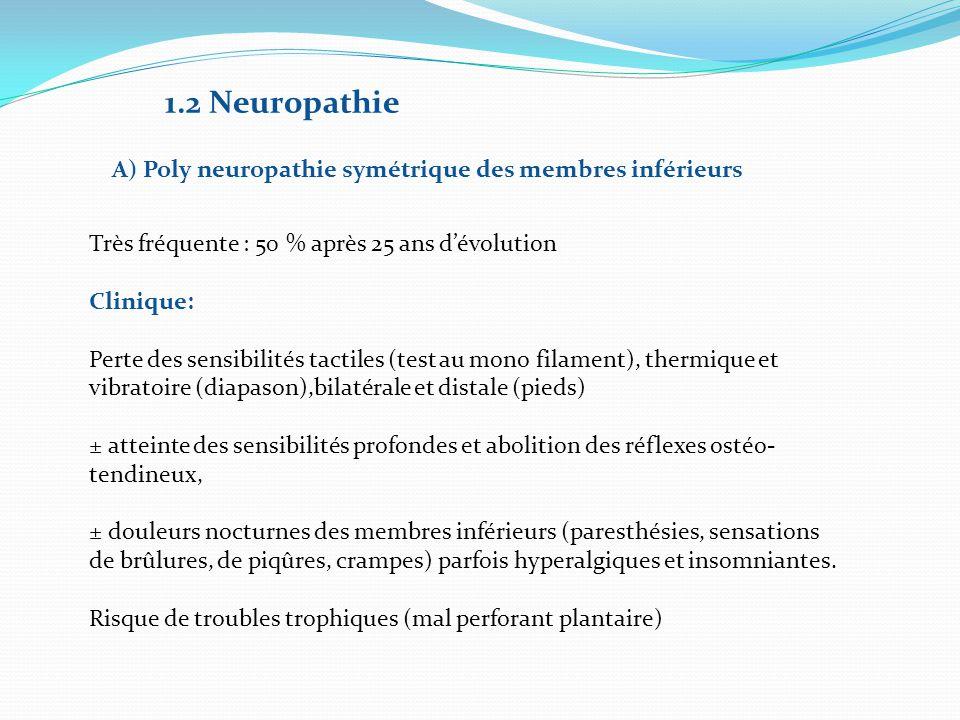 1.2 Neuropathie A) Poly neuropathie symétrique des membres inférieurs Très fréquente : 50 % après 25 ans d'évolution Clinique: Perte des sensibilités