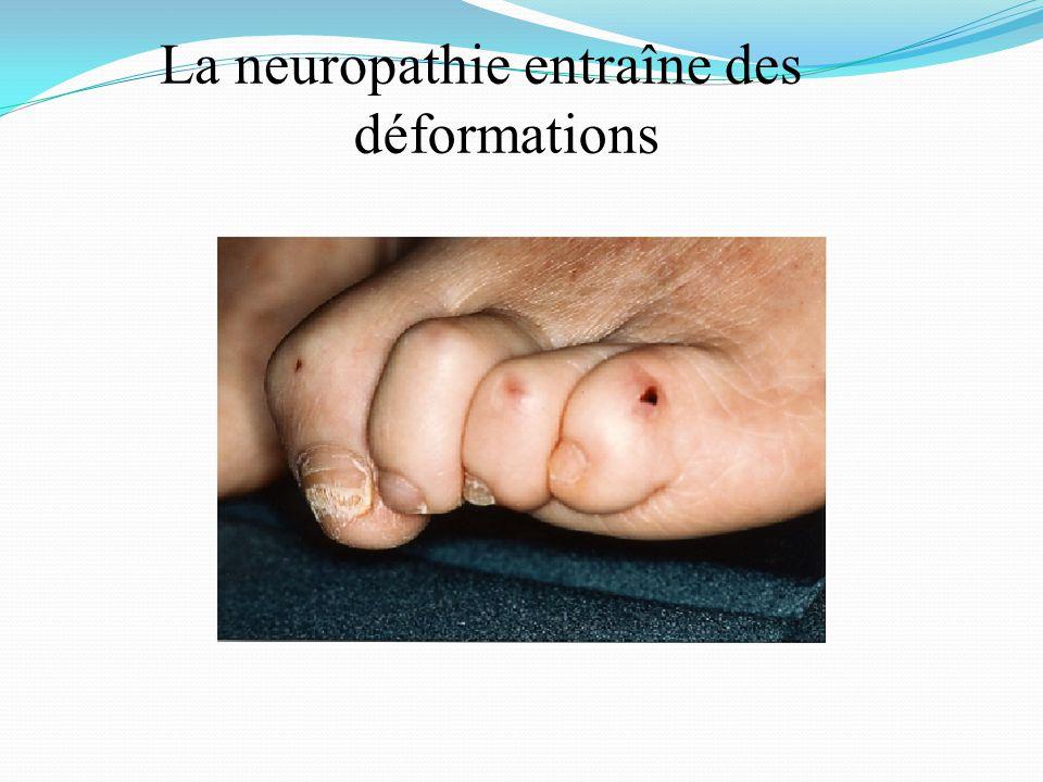 La neuropathie entraîne des déformations