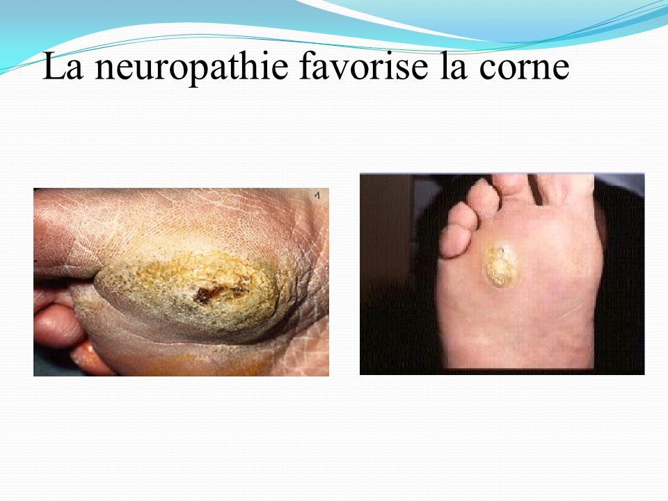 La neuropathie favorise la corne