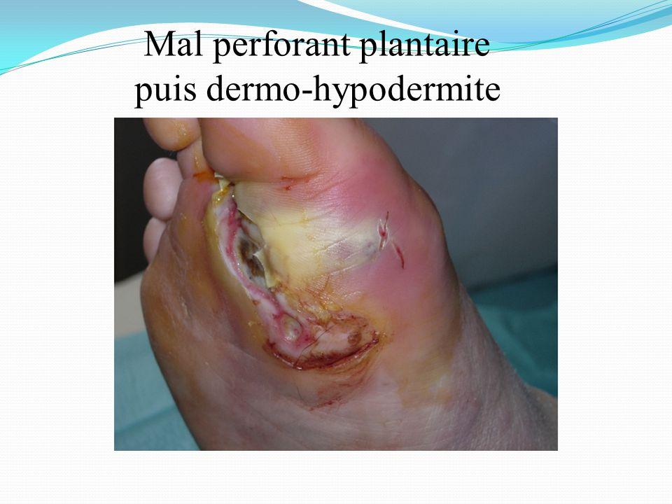 Mal perforant plantaire puis dermo-hypodermite