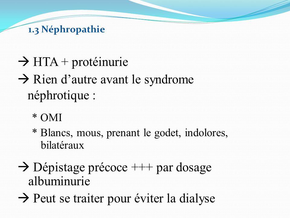 1.3 Néphropathie  HTA + protéinurie  Rien d'autre avant le syndrome néphrotique : * OMI * Blancs, mous, prenant le godet, indolores, bilatéraux  Dé