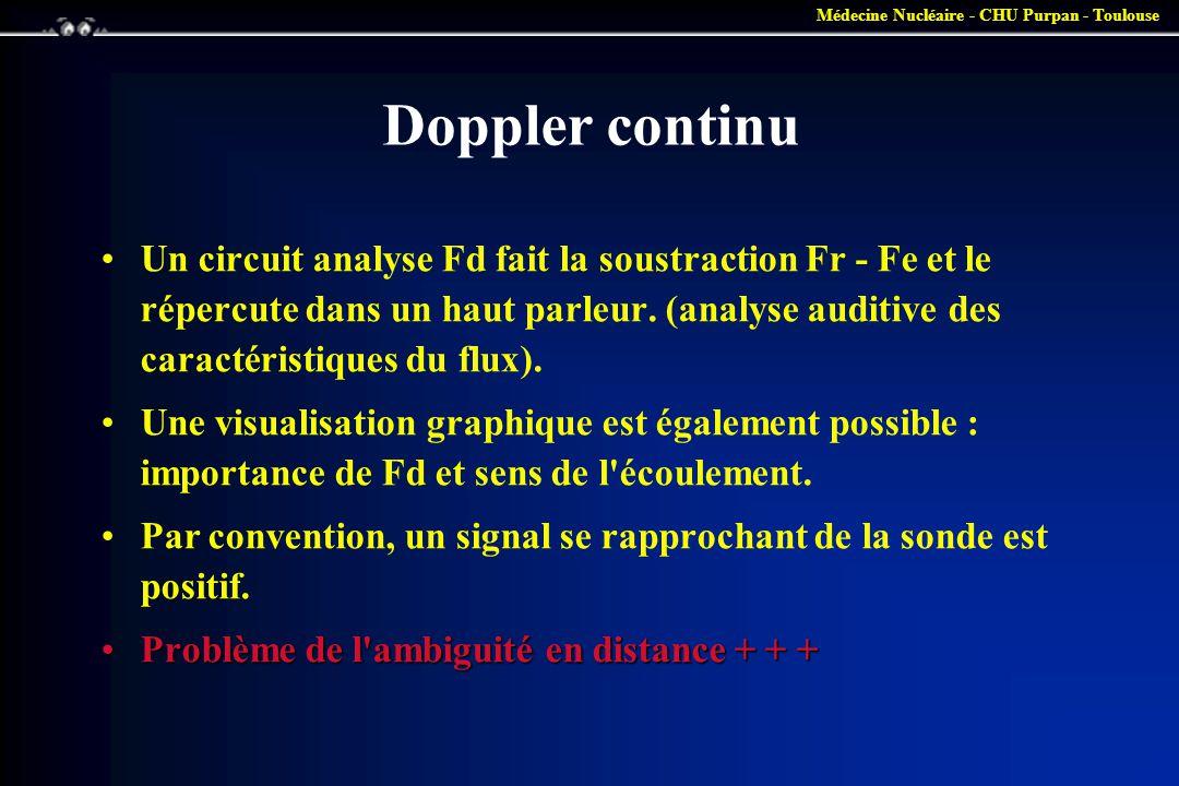 Médecine Nucléaire - CHU Purpan - Toulouse Doppler continu •Un circuit analyse Fd fait la soustraction Fr - Fe et le répercute dans un haut parleur. (