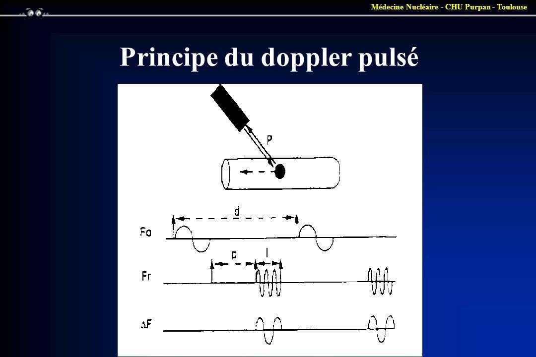 Médecine Nucléaire - CHU Purpan - Toulouse Principe du doppler pulsé