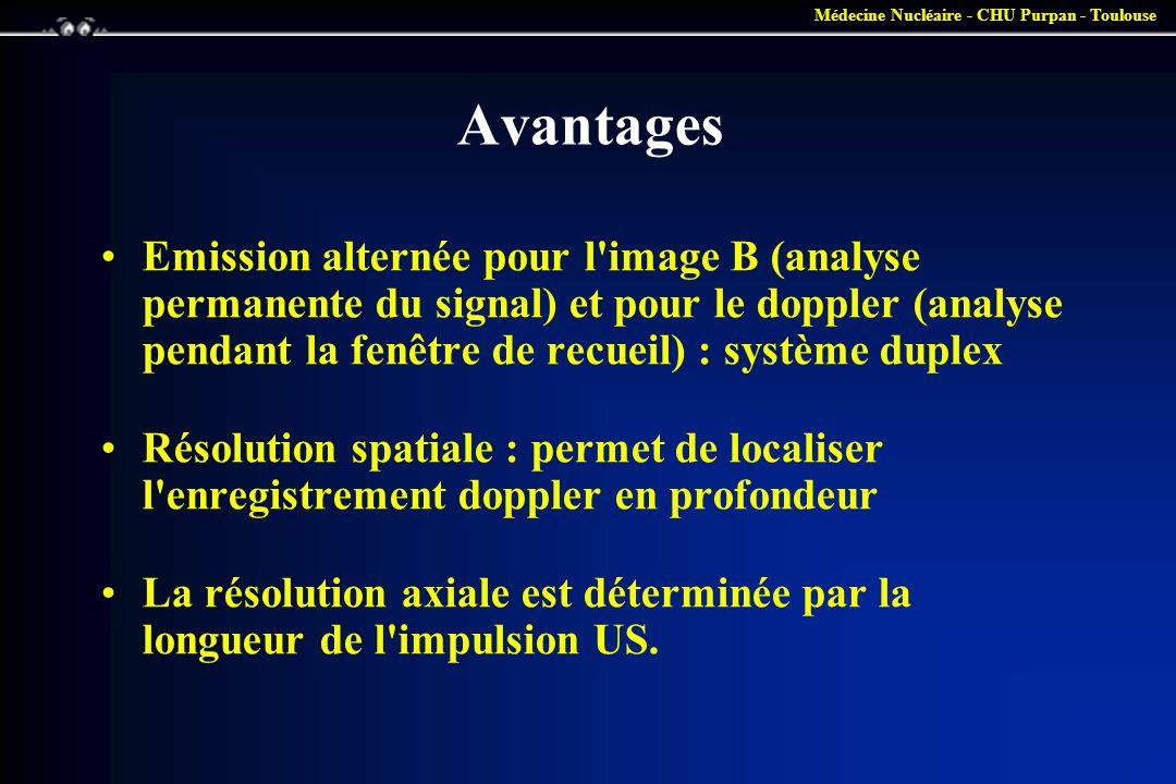 Médecine Nucléaire - CHU Purpan - Toulouse Avantages •Emission alternée pour l'image B (analyse permanente du signal) et pour le doppler (analyse pend