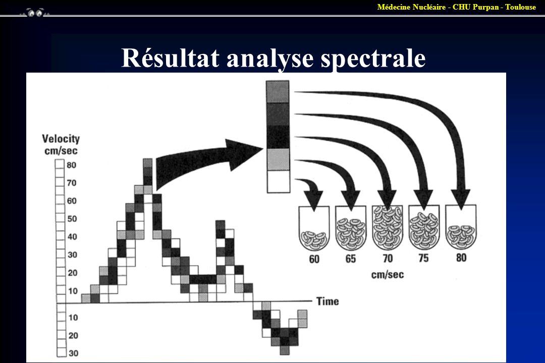 Médecine Nucléaire - CHU Purpan - Toulouse Résultat analyse spectrale