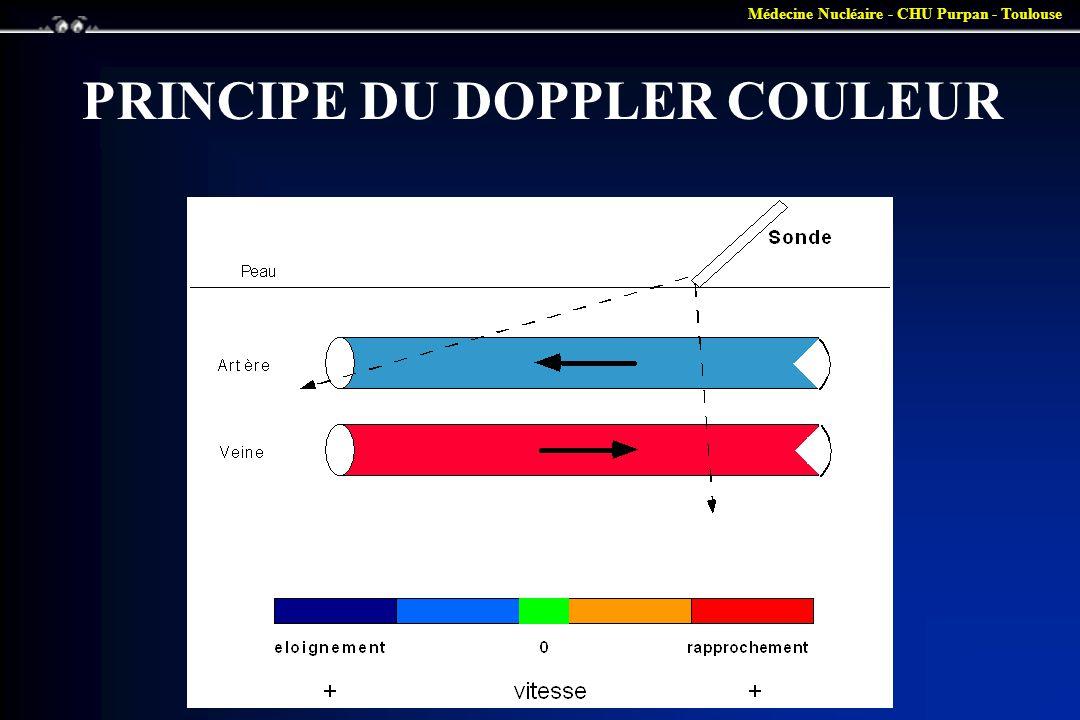 Médecine Nucléaire - CHU Purpan - Toulouse PRINCIPE DU DOPPLER COULEUR