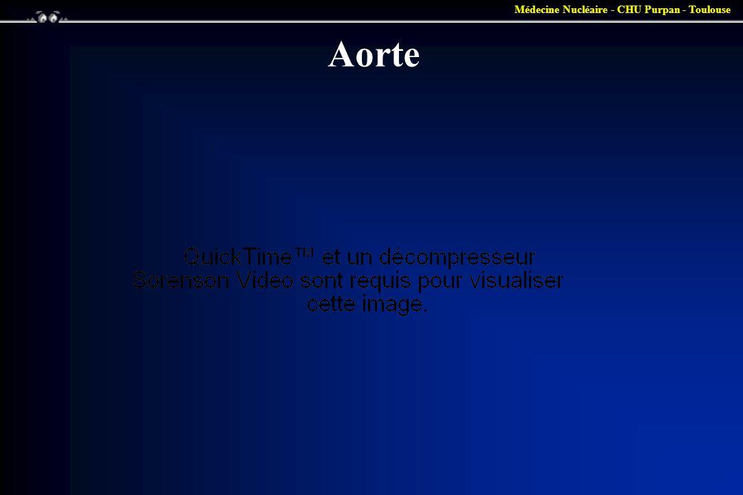 Médecine Nucléaire - CHU Purpan - Toulouse Aorte