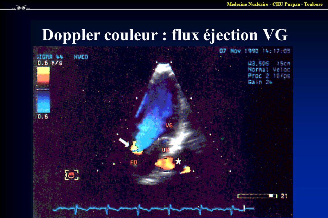 Médecine Nucléaire - CHU Purpan - Toulouse Doppler couleur : flux éjection VG