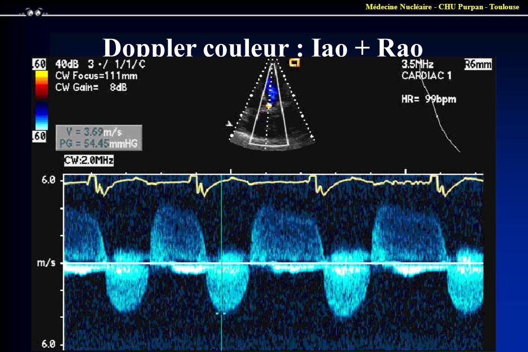 Médecine Nucléaire - CHU Purpan - Toulouse Doppler couleur : Iao + Rao