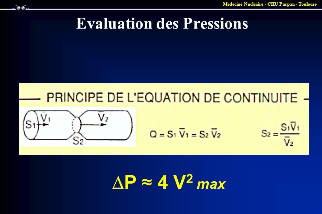 Médecine Nucléaire - CHU Purpan - Toulouse Evaluation des Pressions  P ≈ 4 V 2 max