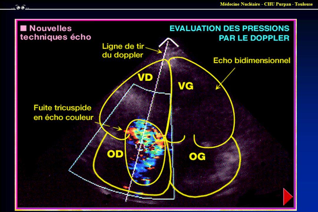 Médecine Nucléaire - CHU Purpan - Toulouse